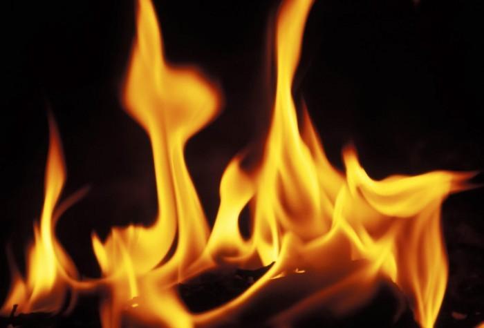 Tratamiento casero para quemaduras