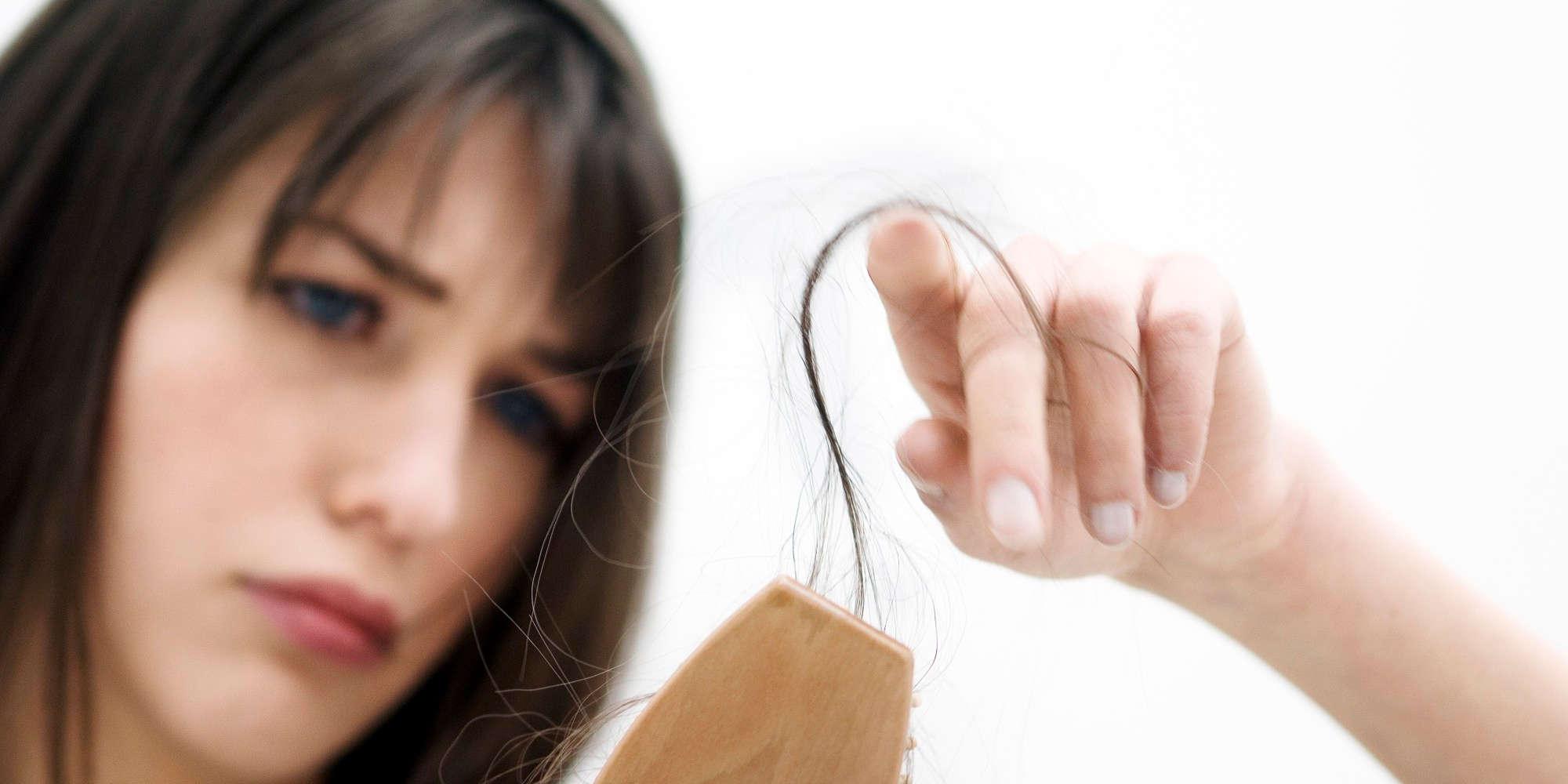 Resultado de imagen para alopecia en mujeres