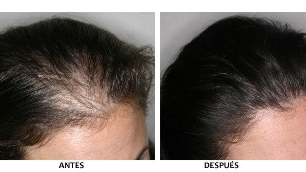 autotrasplante de cabello