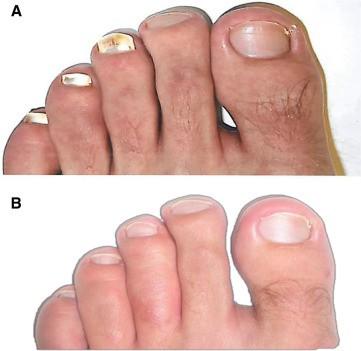 Uñas de los pies. Antes y 48 semanas después de usar VapoRub como tratamiento tópico.